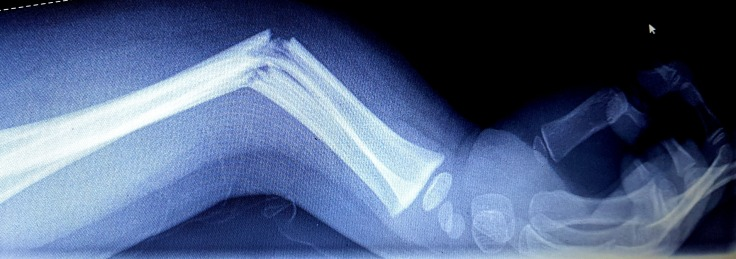 gebroken arm